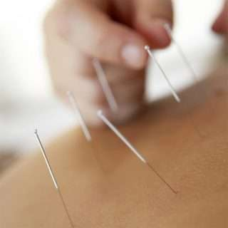 How Can Acupuncture Vancouver Help You?
