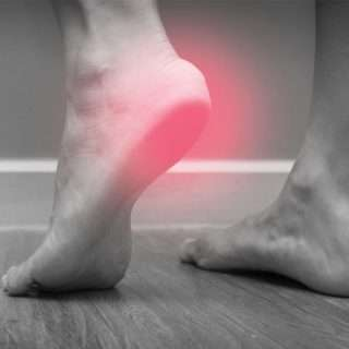 Acupuncture for the Treatment of Neuropathy