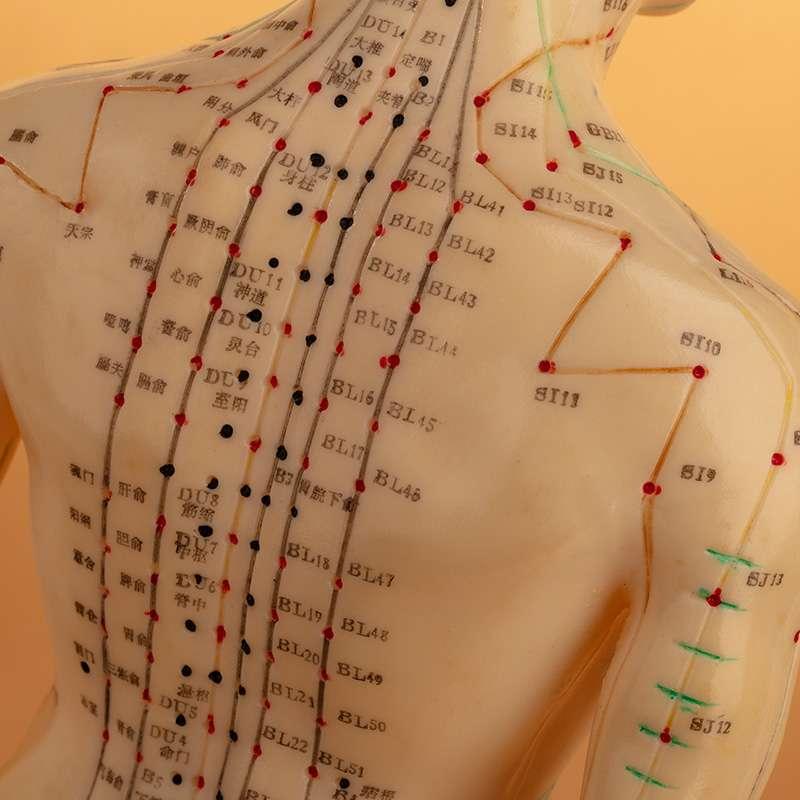 Understanding Acupuncture Vancouver