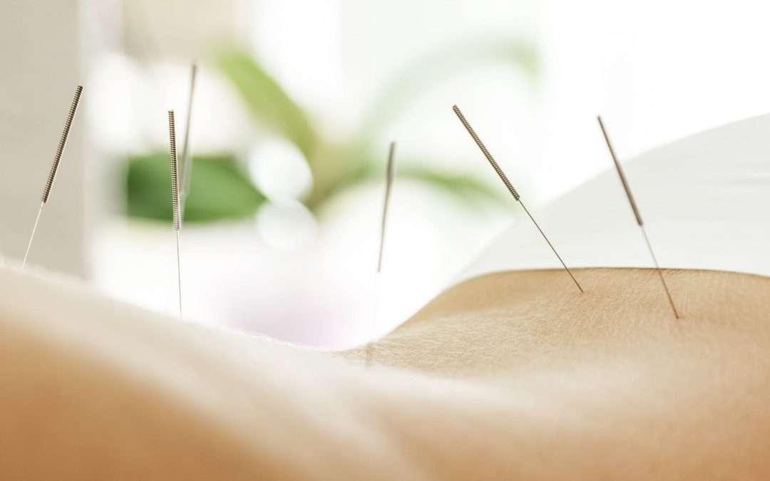 Acupuncture For Sciatic